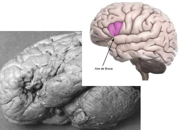 Sans être médecin, on voit assez bien ce qui foirait dans le cerveau de Tan (en bas à gauche)